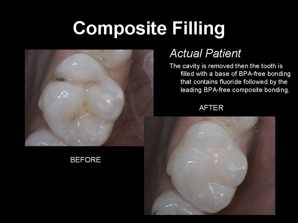 composite filling before and after