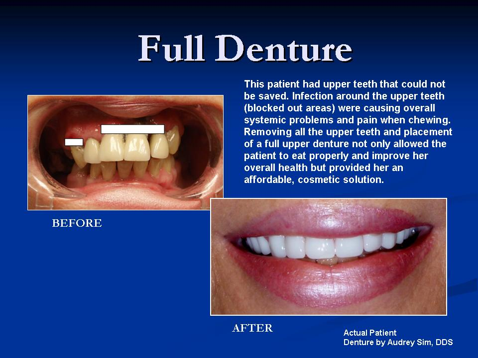 full denture before and after