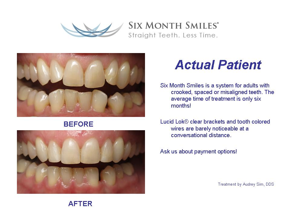 six month smiles straight teeth less time before and after