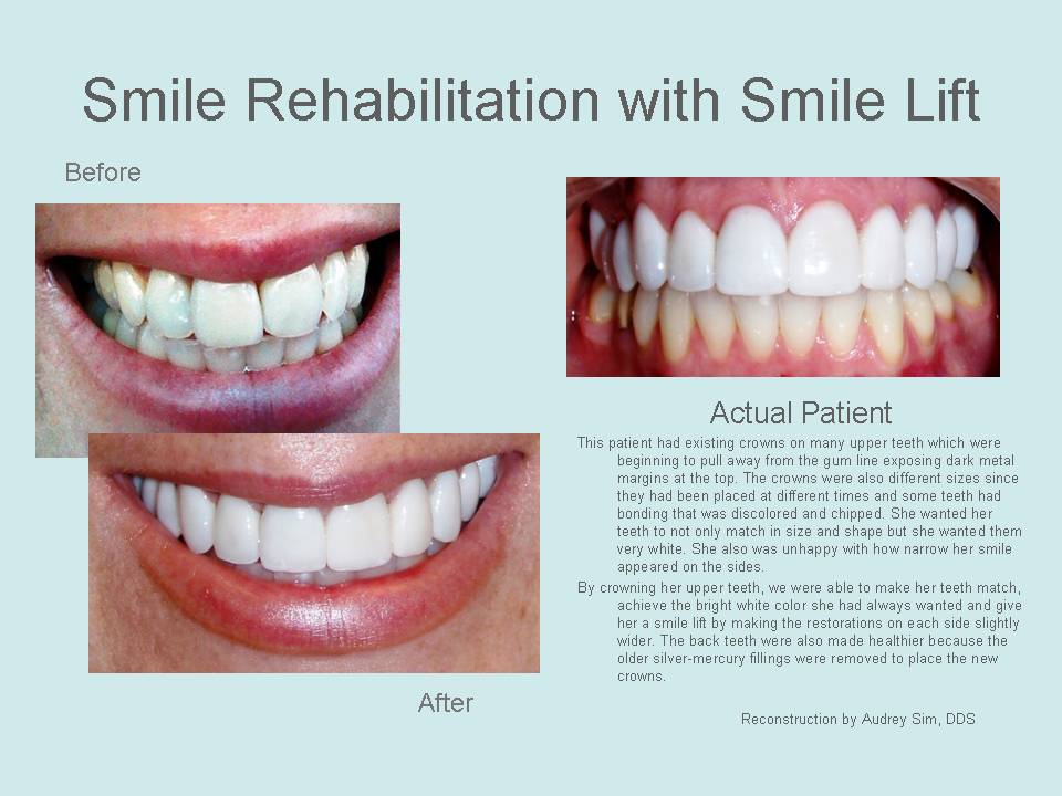 Smile rehabilitation with smile lift before and after